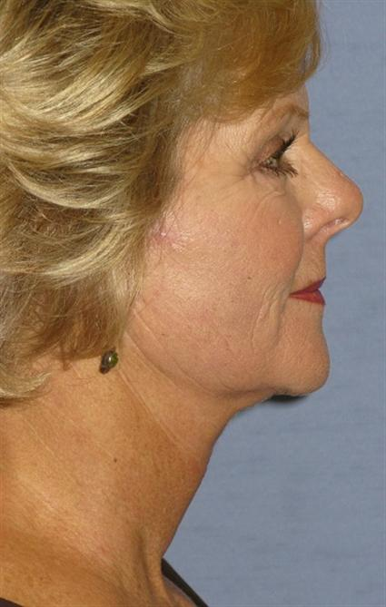 Facelift Before & After Patient #1591