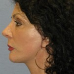 Facelift Before & After Patient #1584