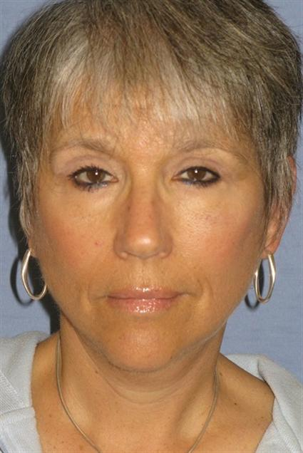 Facelift Before & After Patient #1491