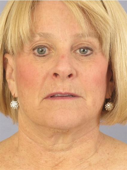 Facelift Before & After Patient #1477