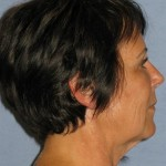 Facelift Before & After Patient #1563