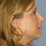 Rhinoplasty Before & After Patient #1776