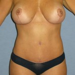 Breast Augmentation Before & After Patient #1063
