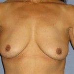 Breast Augmentation Before & After Patient #958