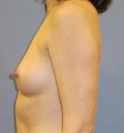 Breast Augmentation Before & After Patient #951