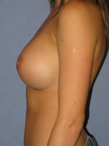 Breast Augmentation Before & After Patient #941