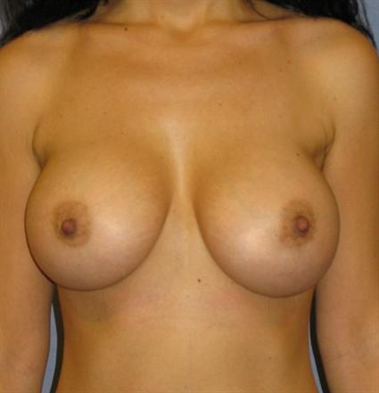 Breast Augmentation Before & After Patient #935