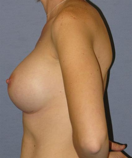 Breast Augmentation Before & After Patient #928
