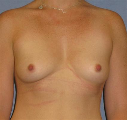 Breast Augmentation Before & After Patient #921