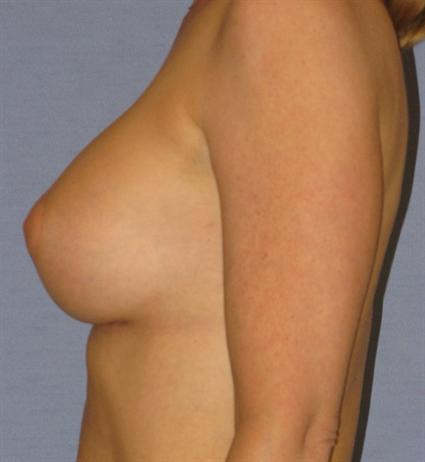 Breast Augmentation Before & After Patient #914