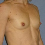 Breast Augmentation Before & After Patient #902