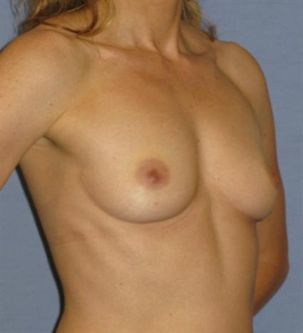 Breast Augmentation Before & After Patient #895