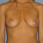 Breast Augmentation Before & After Patient #888