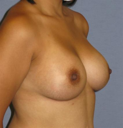 Breast Augmentation Before & After Patient #881