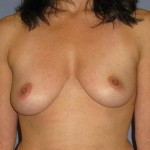 Breast Augmentation Before & After Patient #874