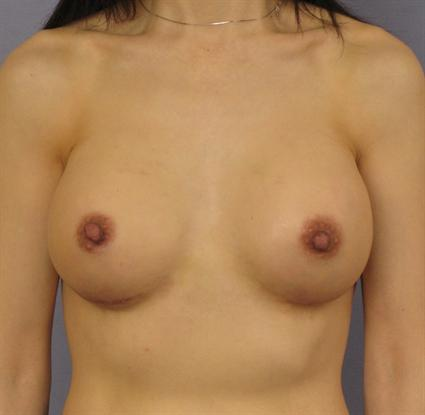 Breast Augmentation Before & After Patient #871