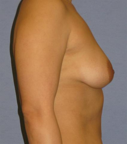 Breast Augmentation Before & After Patient #864