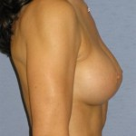 Breast Augmentation Before & After Patient #787