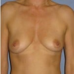 Breast Augmentation Before & After Patient #773