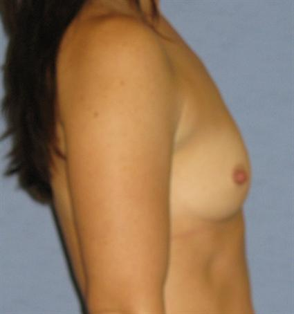 Breast Augmentation Before & After Patient #766