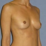 Breast Augmentation Before & After Patient #759
