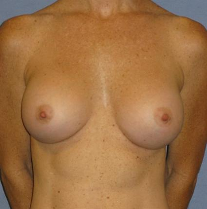 Breast Augmentation Before & After Patient #752