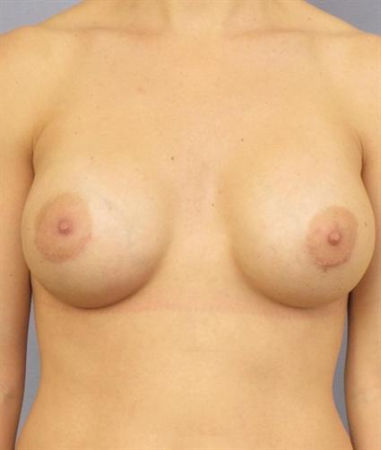 Breast Augmentation Before & After Patient #745