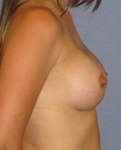 Breast Augmentation Before & After Patient #738