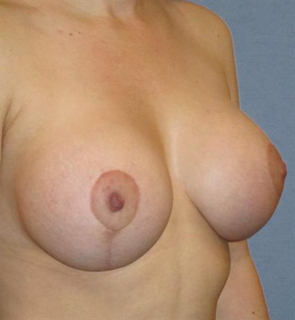 Breast Lift Before & After Patient #1371