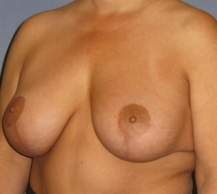 Breast Lift Before & After Patient #1364