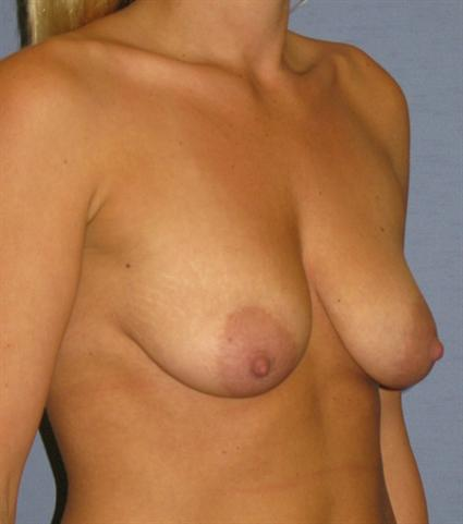 Breast Lift Before & After Patient #1357