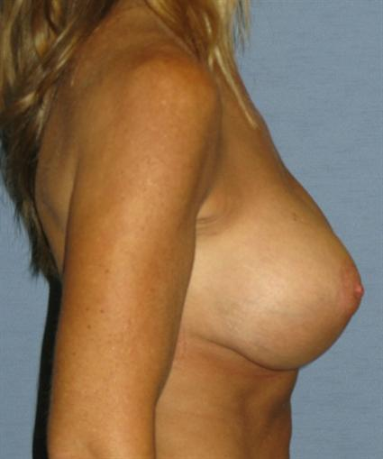 Breast Lift Before & After Patient #1350