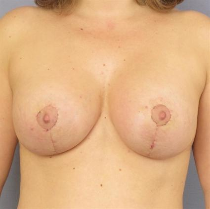 Breast Lift Before & After Patient #1338