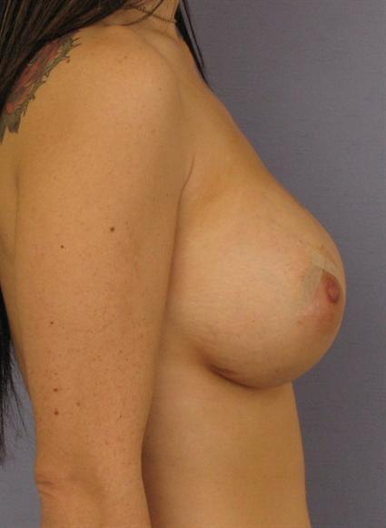 Breast Lift Before & After Patient #1331