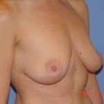 Breast Lift Before & After Patient #1326