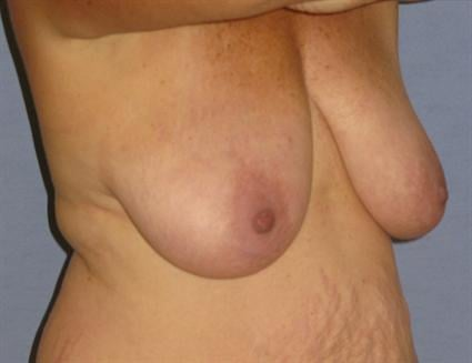 Breast Lift Before & After Patient #1321
