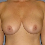 Breast Lift Before & After Patient #1318