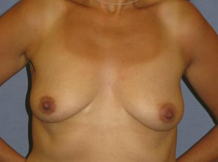Breast Lift Before & After Patient #1311