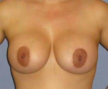 Breast Lift Before & After Patient #1304