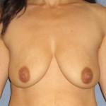 Breast Lift Before & After Patient #1285