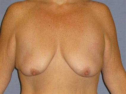 Breast Lift Before & After Patient #1278