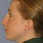 Rhinoplasty Before & After Patient #1719
