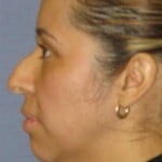 Rhinoplasty Before & After Patient #1714
