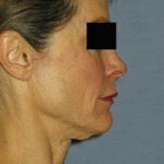 Venus Legacy Before & After Patient #1823
