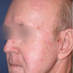 Laser Skin Resurfacing Before & After Patient #1808