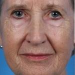 Laser Skin Resurfacing Before & After Patient #1805