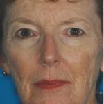 Laser Skin Resurfacing Before & After Patient #1802
