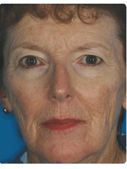 Laser Skin Resurfacing Before & After Patient #1802