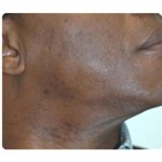 Laser Hair Removal Before & After Patient #1784