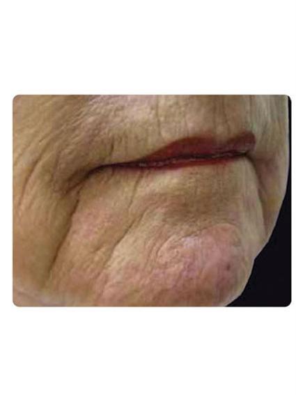 Laser Skin Resurfacing Before & After Patient #1796